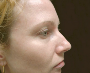 A woman with smooth skin after have lesion removal in north london