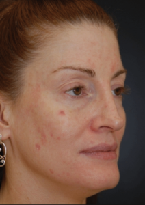 A woman after pigmented lesion treatment in north london