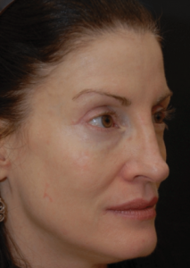 A woman with vascular and pigmented lesions removed in north london