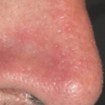A nose after treatment for vascular lesions