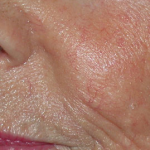 the skin after vascular lesions treatment at Blue Light Dental clinic