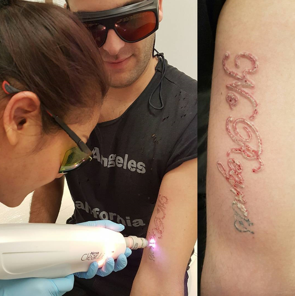 Dentist performing laser tattoo removal on man