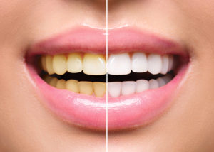 Woman smiling before and after teeth whitening