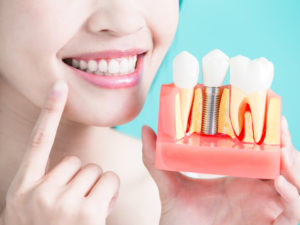 A woman with white teeth holding a model of some dental implants
