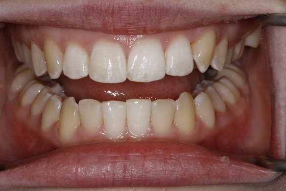 teeth after Invisalign treatment