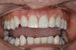 image of tooth crown after treatment