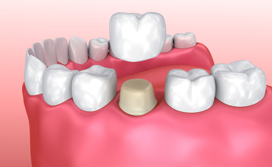 Image of a dental crown example. Dental Crown. Bluelight dental Clinic