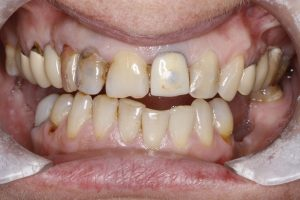 image of dental crown before treatment