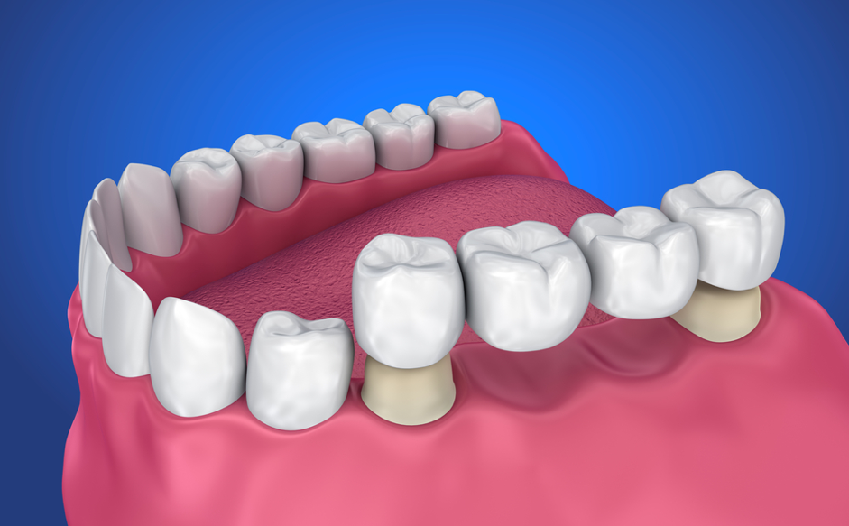 image of a dental brige