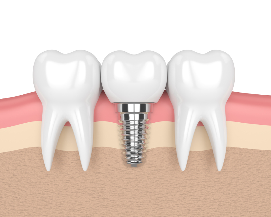 image of a dental implant for illustration