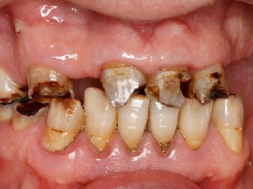 Blue Light Dental - Before