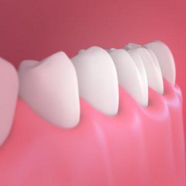 Blue Light Dental - treatment